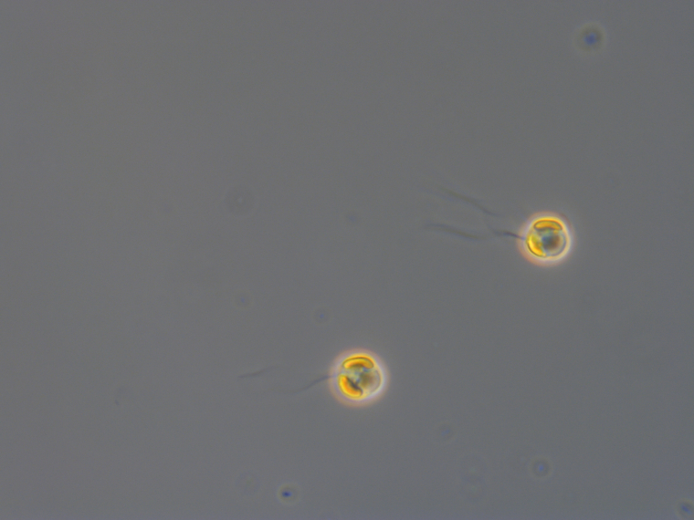 Fig. 1. Chrysochromulina leadbeateri seen in the light microscope. Photo: Bente Edvardsen, UiO.